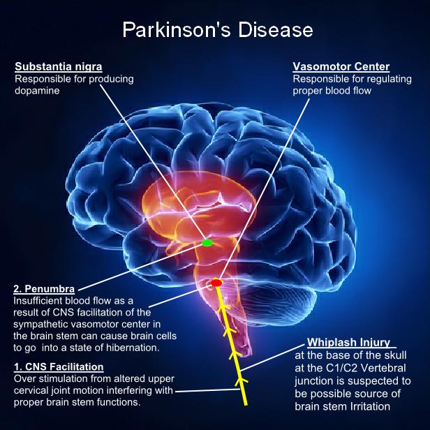 Parkinson's Disease in Women – EastMidlands-RSN